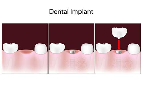 Implant Dentist in Harrison