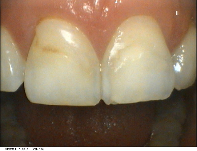 Port Chester Before and After Teeth Whitening